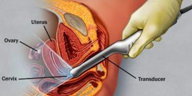 gynekologisk ultraljudsundersökning
